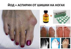 Вы страдаете от выпирающей шишки на ноге? Конечно, при хождении она доставляет...
