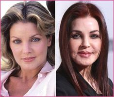 Priscilla Presley Plastic Surgery Nightmare – Cosmetic Surgery Priscilla Presley Plastic Surgery Nightmare Priscilla Presley Plastic Surgery Nightmare – hunter tylo plastic surgery before after Extreme Plastic Surgery, Bad Plastic Surgeries, Plastic Surgery Gone Wrong, Plastic Surgery Photos, Priscilla Presley Plastic Surgery, Celebrity Plastic Surgery, Under The Knife, Younger Skin, Rhinoplasty