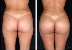 Chirurgie plastique fesses tunisie est une chirurgie esthétique qui permet d'avoir des fesses plus rondes et plus galbées