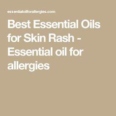Best Essential Oils for Skin Rash - Essential oil for allergies