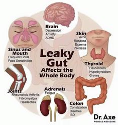 9 Signs You Have a Leaky Gut 1. Digestive issues:gas,bloating,diarrhea or IBS 2. Seasonal allergies or asthma 3. Hormonal imbalances PMS or PCOS 4. Diagnosis of an autoimmune disease 5. Diagnosis of chronic fatigue or fibromyalgia. 6. Mood and mind issues such as depression, anxiety, ADD or ADHD. 7. Skin issues such as acne, rosacea, or eczema. 8. Diagnosis of candida overgrowth. 9. Food allergies or food intolerances. Plexus