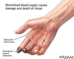 Raynaud's Disease | GoSouthOnline