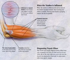 Pain in your elbow in and out of the day? You may have tennis elbow in your joint which is from infalmmation. Learn more about tennis elbow and how to treat it here! Extensor Muscles, Pilates, Elbow Pain, Sports Therapy, Reflexology Massage, Human Anatomy And Physiology, Muscle Anatomy, Tennis Elbow, Massage Techniques