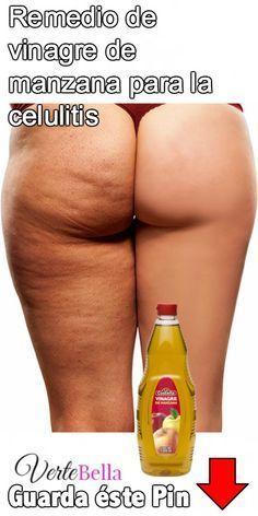 Remedio de vinagre de manzana para la celulitis