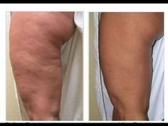 Learn How To Get Rid Of Cellulite Within Only 3 Week! The Best Method To Reduce Cellulite Without Surgery. Smooth & Tighten Your Buns, Hips, Legs & Thighs No. Cellulite Wrap, Causes Of Cellulite, Cellulite Scrub, Cellulite Exercises, Cellulite Remedies, Natural Skin Tightening, Skin Tightening Mask, Skin Firming, Coconut Oil Cellulite