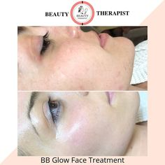 15 Best BB Glow images in 2019   Skin treatments, Skincare, Bb