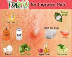 What is ingrown hair? Ingrown hair is a condition where the hair grows sideways into the skin. The condition is widespread in people who have curly or coarse hair. DIY Home Remedy For Ingrown Hair. Top 10 Home Remedies, Home Remedies For Hair, Beauty Care, Beauty Skin, Health And Beauty, Beauty Secrets, Beauty Hacks, Beauty Tips, Infected Ingrown Hair