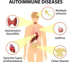 More and more people in the modern world are being diagnosed with autoimmune diseases. These diseases can destroy healthy cells and cause abnormal organ growth and serious dysfunctions.  There are over 80 different autoimmune disorders. Some of the more common conditions include:  Multiple sclerosis (MS) Addison's disease Celiac