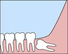 Wisdom Tooth Extraction - Ideal Family Dentistry