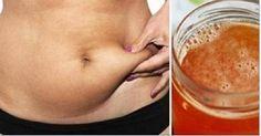 Elimine a gordura da barriga e o excesso de líquido em 30 dias com esta incrível fórmula!   Cura pela Natureza