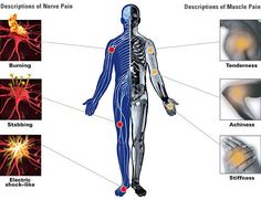 Pain relievers are medicines that reduce or relieve headaches, sore muscles, arthritis, or other aches and pains.