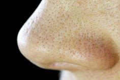 鼻、頬のプツプツ毛穴を10日程度でキメ肌に変える1000円のアイテムが凄いのでシェアします! | Happiness Woman