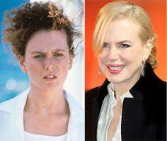 Nicole Kidman A.K.A. madam botox. It also looks like she had her lips done!