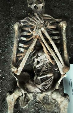 A skeleton of a mother, and her baby, who both died during her pregnancy.