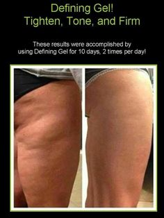 It Works! Defining Gel can help reduce the appearance of cellulite, scars, loose skin, and stretch marks. For more information on It Works! Defining Gel visit my website at:  www.sarahowenswraps.myitworks.com or email me at owenssm.myitworks@gmail.com