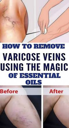 How To Remove Varicose Veins Using The Magic of Olive OilOlive oil is outwardly one of the maximum powerful herbal treatments for varicose veins. This situation is noticeably unattractive and can motive pain and pain, lowering the potential to transport commonly. Fitness Workout For Women, Health And Fitness Tips, Health Goals, Health Tips, Varicose Vein Removal, Varicose Veins, Health Club, Women's Health, Yoga Workouts