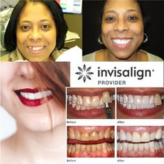 At Stunning Smiles of Las Vegas, you can trust our award-winning dentist to rebuild your smile and confidence. Perfect Image, Perfect Photo, Love Photos, Cool Pictures, Take Off Your Shoes, Cosmetic Dentistry, Dental Implants, Im Not Perfect, Las Vegas