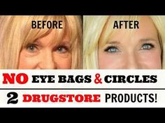 Get RID Of MOUTH WRINKLES! WithOUT Fillers! - YouTube