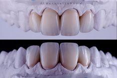 Dental Technician, Teeth Shape, Photography, Photograph, Fotografie, Photoshoot, Fotografia
