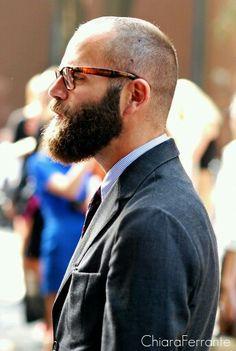 Male pattern baldness NW4-5 beard