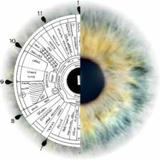 Iridology Eye Sick Person   Iridology - is the eye a window to all disease?
