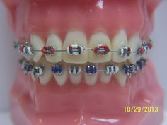 Viewing Gallery For - Braces Colors Combinations