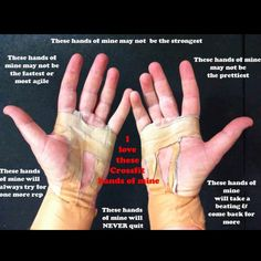 My Crossfit hands...