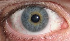 A human eye displaying partial heterochromia iridum, where part of one iris is a different color from its remainder. Eye color, specifically the color of the irises, is determined primarily by the concentration and distribution of melanin. Shown here is an example of central heterochromia, where there are two colors in the same iris.  Photo: Adam Cuerden