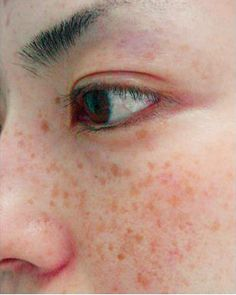 Freckles can be cute, but excessive freckles on the face can distract from your appearance. With sun exposure, freckles can also darken and create uneven pigmentation on the skin which can create unwanted seasonal variation in your appearance.