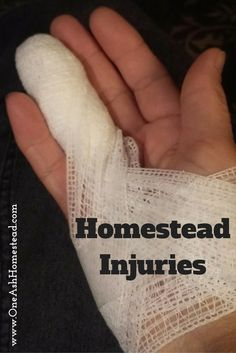 Homestead Injuries