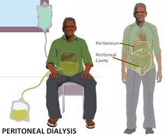 #RenalCareIndia http://renalcareindia.org/pd.aspx  In peritoneal dialysis, dialysis fluid (called dialysate) is infused into the abdominal cavity (called the peritoneal cavity) through a catheter. The fluid is held (dwells) within the abdomen for a prescribed period of time; this is called a dwell. The lining of the abdomen (the peritoneum) acts as a membrane to allow excess fluids and waste products to pass from the bloodstream into the dialysate.