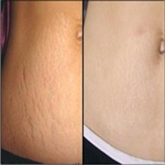 How to Get Rid of Stretch Marks Fast? Stretch marks are the visible pale color s.How to Get Rid of Stretch Marks Fast? Stretch marks are the visible pale color stripes that usually appear on the skin of woman more than man. They can be caused Stretch Mark Remedies, Stretch Mark Removal, Skin Care Regimen, Skin Care Tips, Beste Concealer, Aloe Vera, Stretch Marks On Thighs, Skin Tightening Mask, Tighten Loose Skin