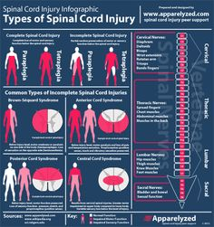 Infographic showing different types of incomplete spinal cord injuries.