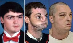 Face transplant man doing well after biggest operation yet  Richard Lee Norris given new face, nose teeth and jaw after years living as a recluse in the US