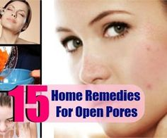 15 Home Remedies For Open Pores - Natural Cure & Herbal Treatment For Open Pores | Search Home Remedy