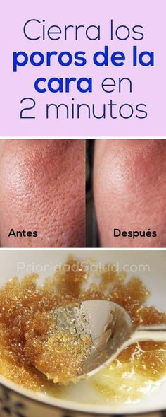 Acne is defined as a diseased condition of the skin that involves the hair and oil glands. Face acne can spoil your appearance to a great extent and body acne c Beauty Tips For Face, Beauty Secrets, Beauty Hacks, Diy Beauty, Beauty Ideas, Beauty Guide, Homemade Beauty, Beauty Products, Beauty Care