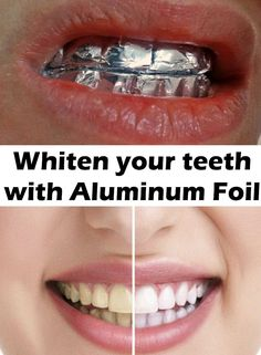 A beautiful teeth completely changes your physiognomy and gives you more confidence in yourself. See how you can whiten your teeth at home without spending huge amounts of money . 400