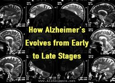 average, people age 65 and over survive four to eight years after Alzheimer's diagnosis. However, some live for as many as 20 years. Stages Of Dementia, Lewy Body Dementia, Alzheimer's And Dementia, Alzheimer Care, Dementia Care, Dementia Activities, Elderly Activities, Senior Activities, Alzheimers Awareness