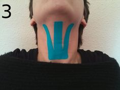 Kinesiotaping applied to myofunctional therapy (speech therapy): Reduction of drooling, atypical swallowing, dysphagia, strengthening bucofonatory musculature … Speech Pathology, Speech Language Therapy, Speech Therapy, Facial Cupping, Facial Yoga, K Tape, Speech Delay, Oral Motor, Face Exercises