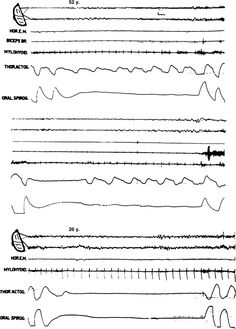 Polysomnography Examples Of Apnea Snorts And Gasps In Breathing That A Technologist Looks For