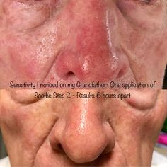 My precious grandfather has just finished his 5th and final round of chemotherapy. I noticed just from him going from inside the hospital to the car that he had major photosensitivity. My lightbulb turned on- what can I do to soothe his pain in ONE way? These are his results. #soothinghissensitivity #helpingothers #lifechangingskincare