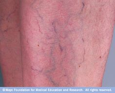 What treatment options are available for spider veins?