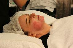 Immediately post 1.5mm Medical skin needling treatment for acne scars