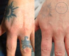 40 best Hand Tattoo Removal images in 2017   Tattoos, Amazing ...
