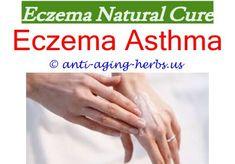 Betnovate cream for eczema.Betnovate for eczema.Annular eczema - Eczema Cure. 6605172381 #EczemaOnLips Eye Eczema, Eczema Shampoo, Eczema Scars, Eczema On Hands, Get Rid Of Eczema, Eczema Causes, Severe Eczema, Scalp Psoriasis Treatment