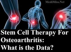 Stem Cell Therapy For Osteoarthritis: What is the Data? ~ MediMiss