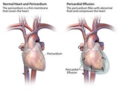 Window Pericardial Effusion | Pericarditis and pericardial effusion