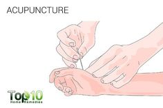 acupuncture for trigger finger