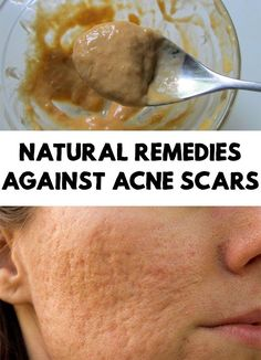 A lot of people that at some time had problems with acne, now are struggling with the marks that by this affection left. Try 4 remedies against acne scars