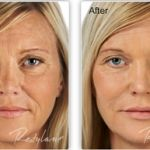 Restylane is a cosmetic dermal filler that replaces lost volume and restores youthful contours.   http://www.amberwiebedds.com/dental-services/facial-esthetics/juvederm-restylane-fillers/